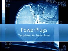 PowerPlugs: PowerPoint template with black and blue x-ray of a human brain