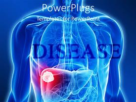PowerPlugs: PowerPoint template with blue x-ray of chest and abdomen with tumor in the liver, cancer