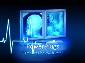 PowerPoint template displaying large X-rays viewed on hospital high end monitors with ecg wave in background