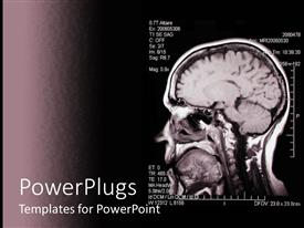 PowerPoint template displaying magnetic Resonance Angiogram image of a brain on a dark background
