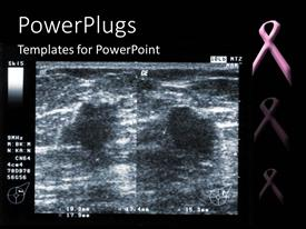 PowerPlugs: PowerPoint template with ultrasound depiction of breast tumor with breast fighting pink ribbon