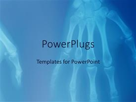 PowerPlugs: PowerPoint template with x-ray of human hands showing skeleton of hand fingers